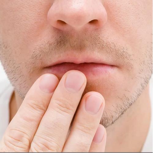 Een droge mond maakt het leven zuur, aarzel niet en kom naar het speekselspreekuur!